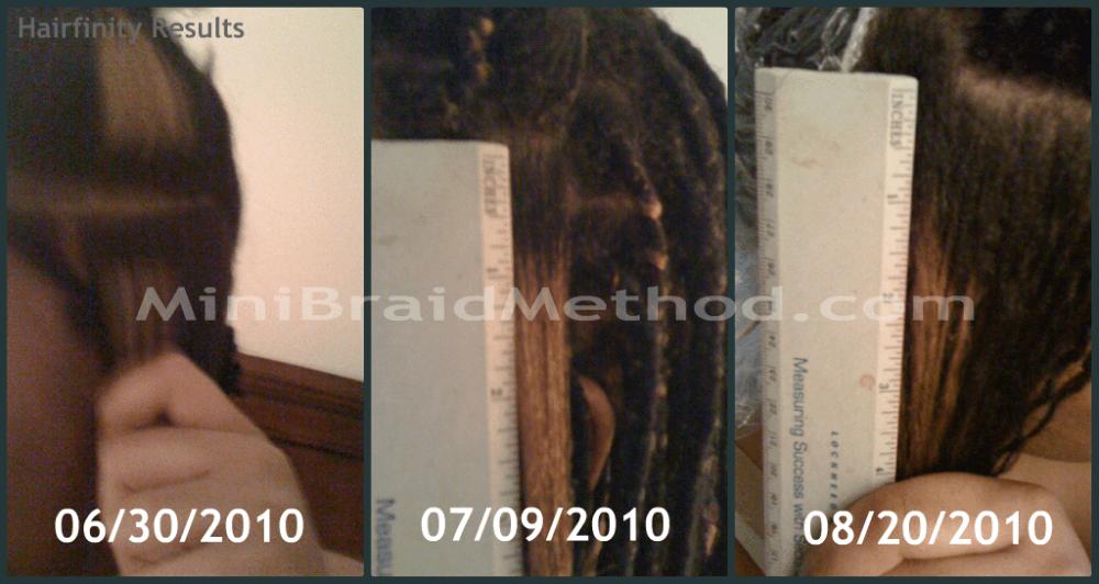My Experience With Hairfinity: Hair Growth Vitamins (2/4)