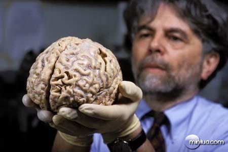 cerebro(1)