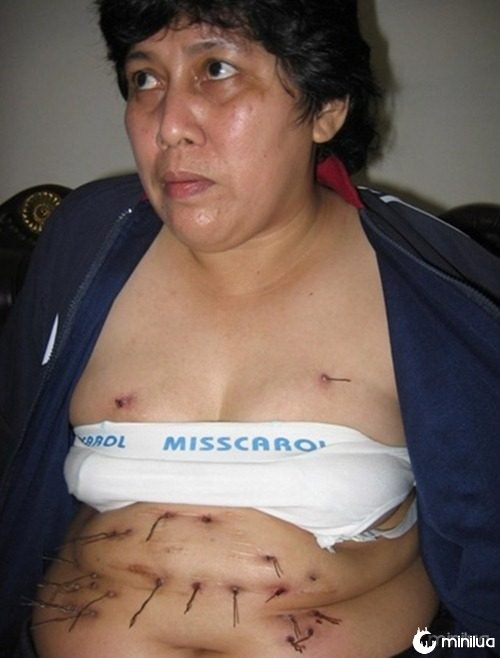 fios de metal crescendo no corpo de mulher