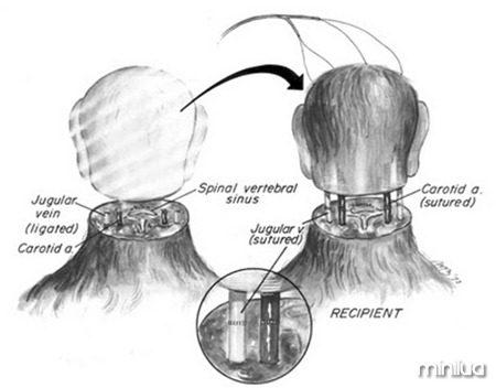 Transplante-de-cabeça-de-macaco