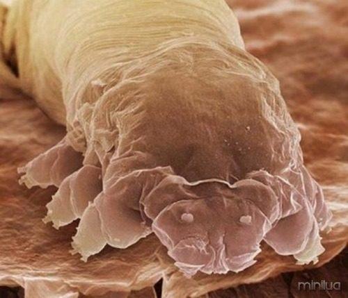 demodex cilios