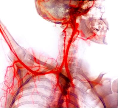 o-sangue-transportado-pelo-sistema-circulatorio-mantido-com-ph-na-faixa-735-745-gracas-acao-solucoes-tampao-1318601678