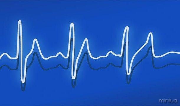 Seu batimento cardíaco ajusta de acordo com a música que você está ouvindo