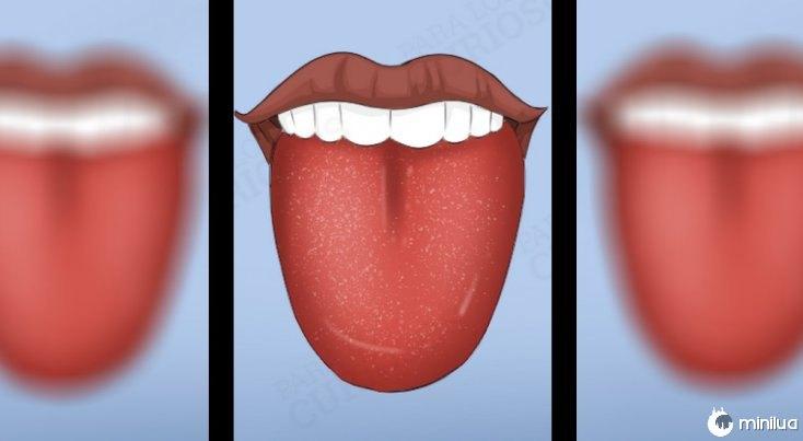 sintomas língua cor