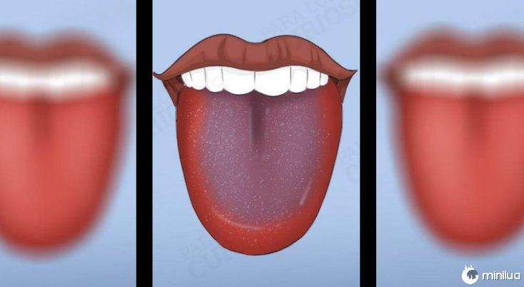 sintomas cor Bluetongue