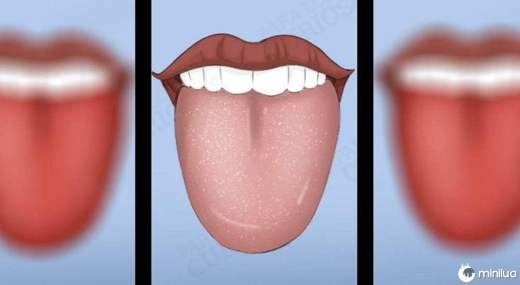 sintomas língua cor branca