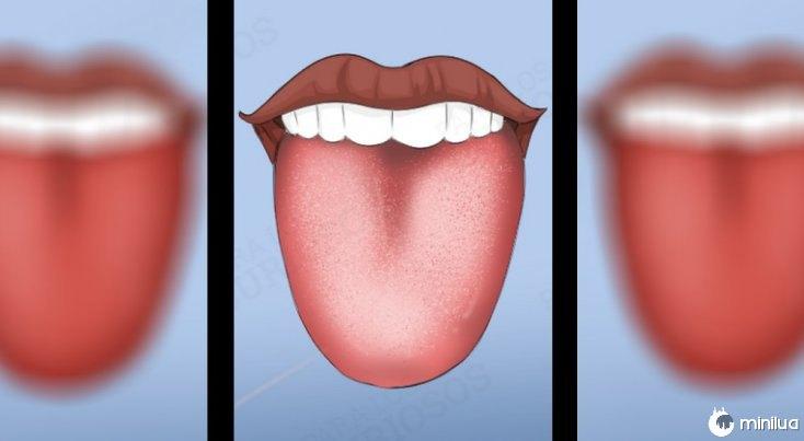 sintomas cor da camada branca língua