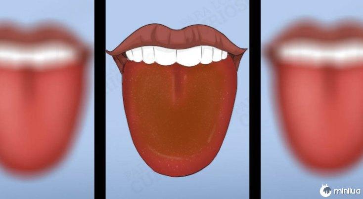 Os sintomas língua colorido com revestimento castanho