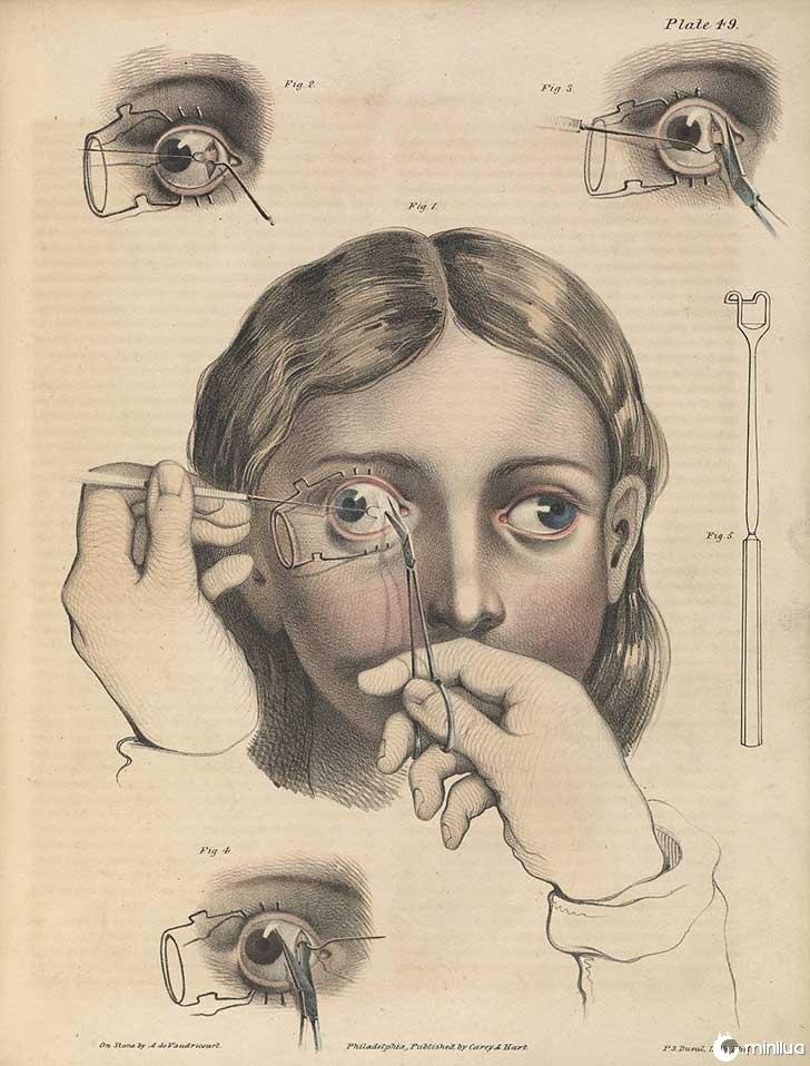 século barbara cirurgia 19 1