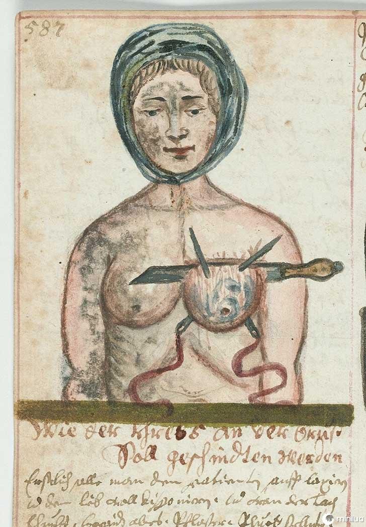 século barbara cirurgia 19 14