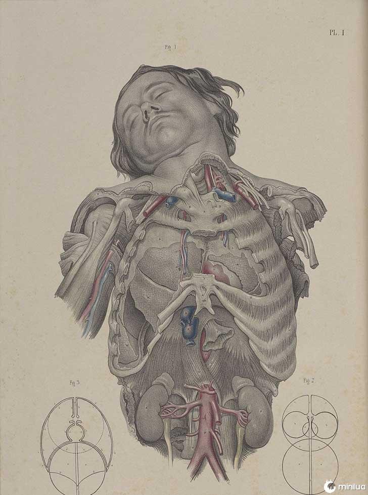 século barbara cirurgia 19 16