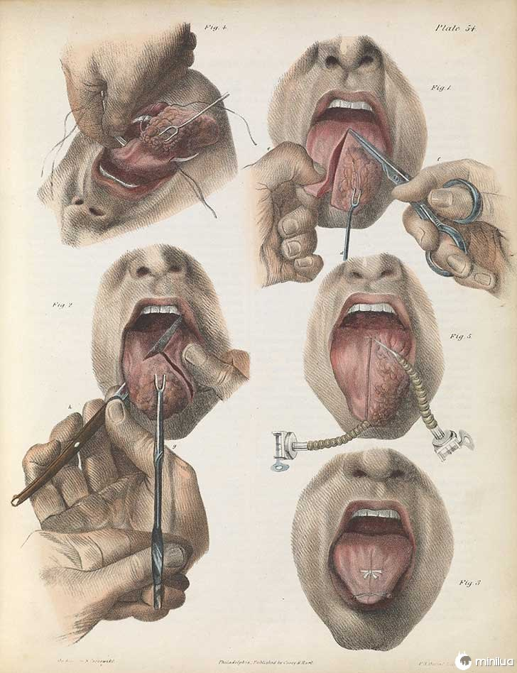 século barbara cirurgia 19 2