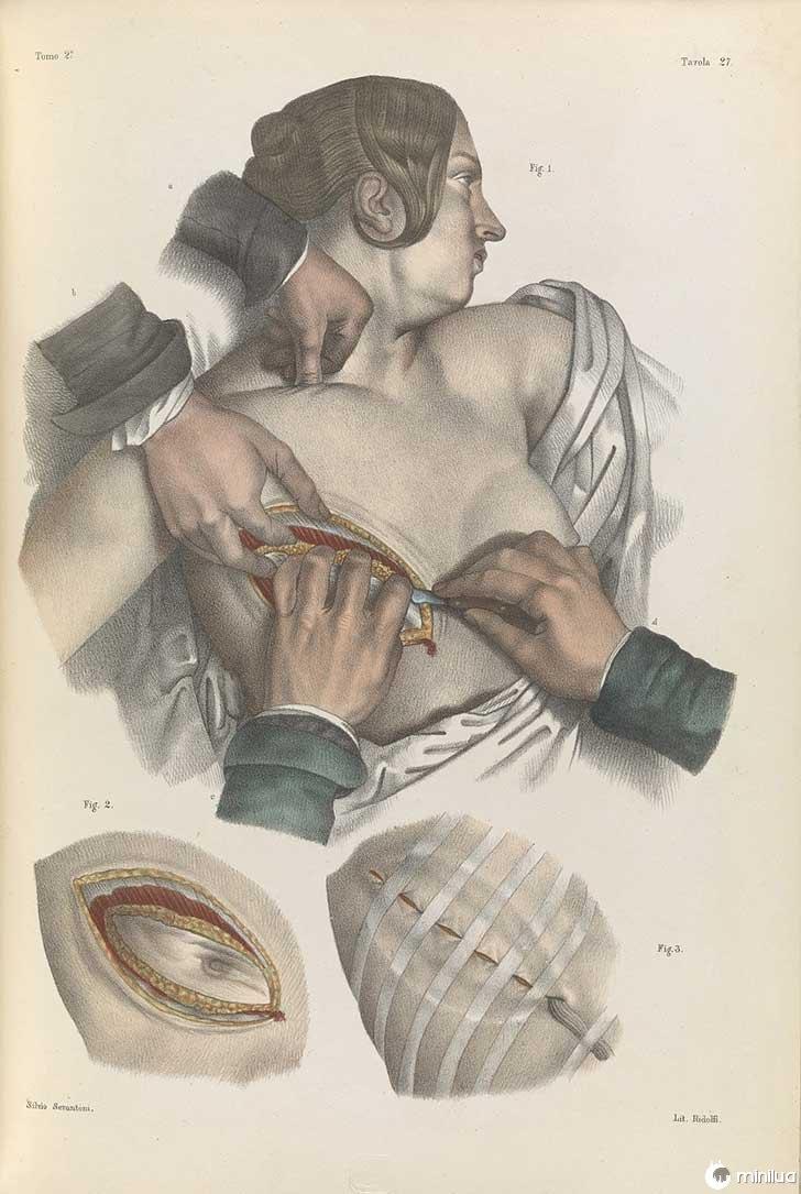 século barbara cirurgia 19 5