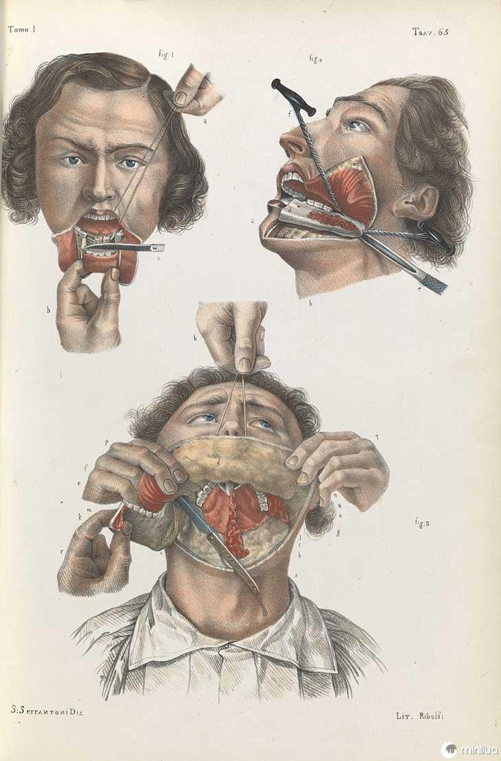 século barbara cirurgia 19 6