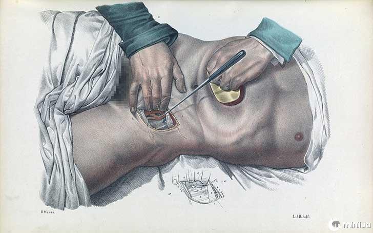 século barbara cirurgia 19 7