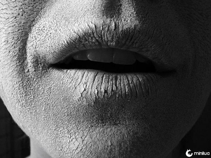 lábios secos