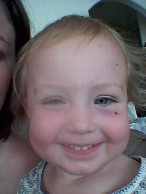 After the pain wore off... Its been very simple to tell other toddler parents in crowds with this shiner... they are the only ones who don't have a look of disgust when they see the shiner, I have been asked 'table?' a few times :)