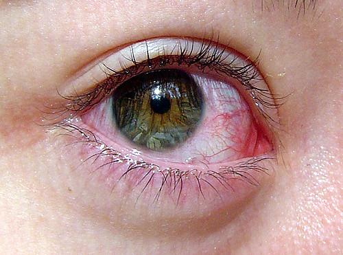 Punetus silmades – allergia sümptom