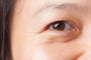 Kortsud silmade ümber