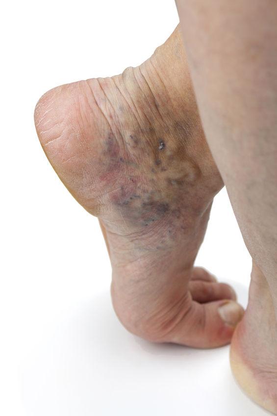 problema venelor la picioare