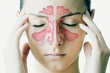 Cum tratam sinuzita acuta si sinuzita cronica in mod natural