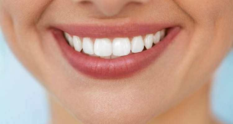 The Natural Shade of White: 7 Teeth Whitening Methods That You Can Try at Home