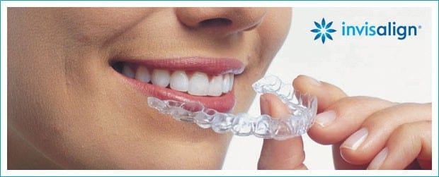 Getting The Most Out Of Your Invisalign Treatment