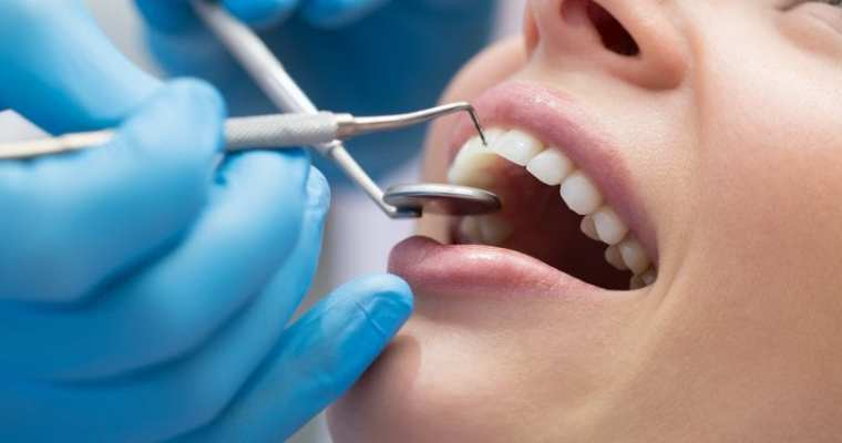 EVERYTHING ABOUT TAKING CARE OF YOUR TEETH