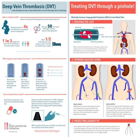 Deep Vein Thrombosis Treatment Overview