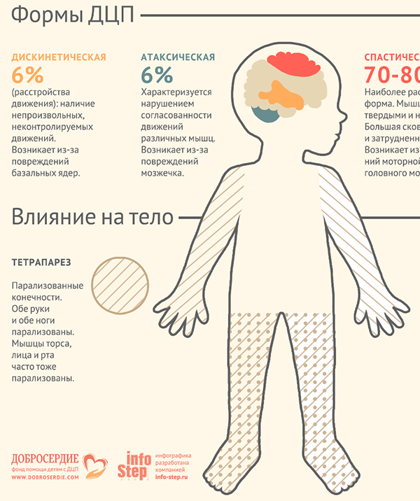 What is Cerebral Palsy? on Behance
