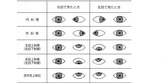 村方乃々佳(ののかちゃん)の斜視の原因と比較画像