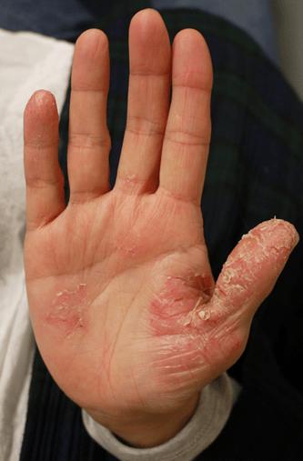 ビオチンだけが治療じゃない掌蹠膿疱症治療