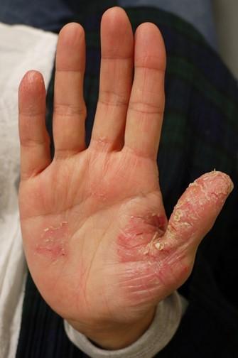 掌蹠膿疱症の手のひら(治療前)