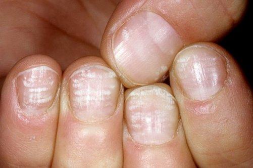 Черные полосы на ногтях рук причины