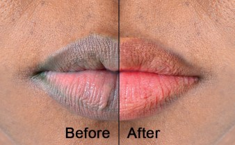 effective-ways-to-get-soft-rosy-lips