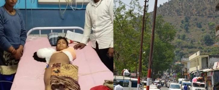 उत्तराखंड : पोल के करंट से झुलसे मासूम के कटे दोनों हाथ, गरीब पिता ने कहा कार्रवाई नहीं तो आत्मदाह