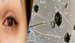 ब्लैक फंगस : लक्षण, कारण, बचाव और सावधानियां, कोरोना मरीजों को ज्यादा हो रहा ये संक्रमण, पढ़िये