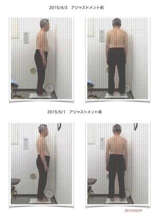 座骨神経痛63歳男性3回