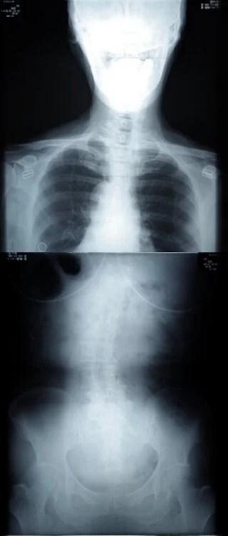 L4/L5/S1 脊柱管狭窄症