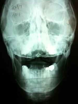 頚椎1番オープンマウス像