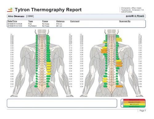 tytron-report3
