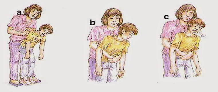 atragantamiento niños