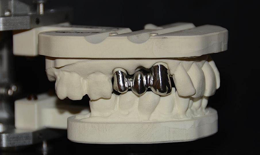 5 Unit Dental Bridge