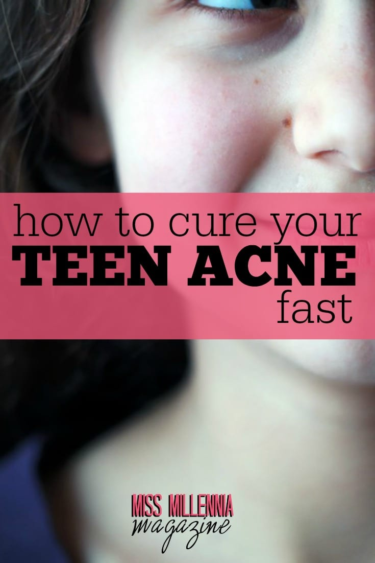 According to studies, as much as 85% of the human race are affected by teen acne. However, this condition can be managed and overtime gotten out of the way.