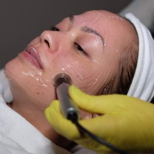 Microdermabrasion PerfectHair Nina Ultraschall