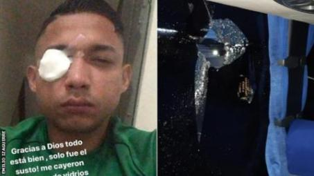 3 Killed In Football Match In Honduras, Former Celtic Player Among Those Injured