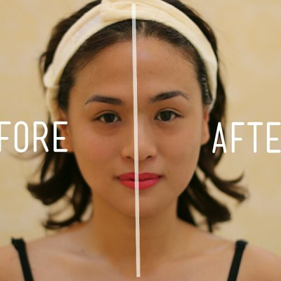 MY FACE LIFT TITE EXPERIENCE AT LUMINISCE SKIN CLINIC