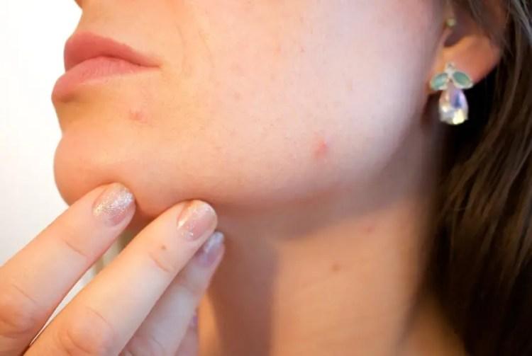 Manfaat Minyak Pala untuk Kesehatan Kulit Wajah