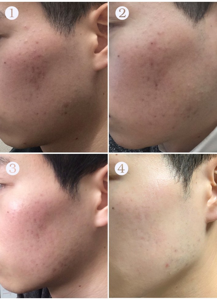how I cured acne by manyo galactomyces