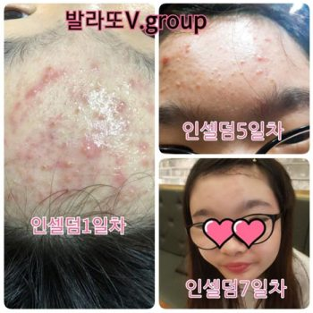 Incellderm customer review and photo 006